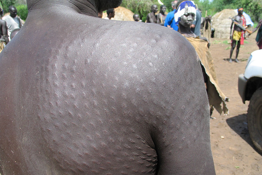 Body Scarification